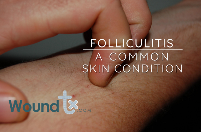 Folliculitis - A common skin condition
