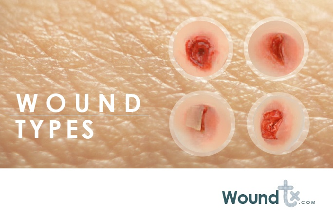 Wound-Types-Woundtx.com