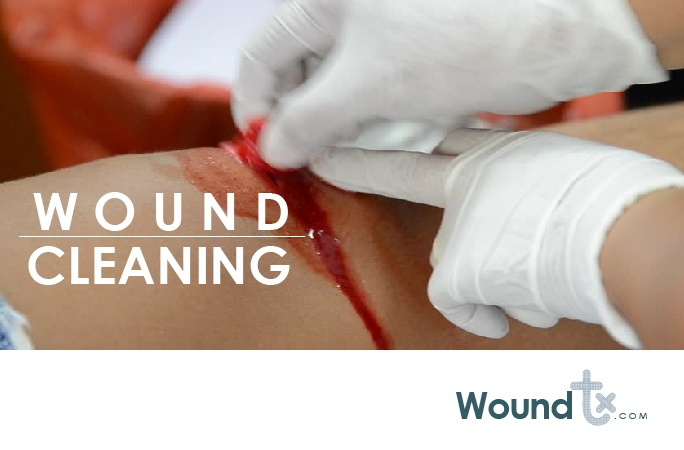 Wound cleaning-Woundtx.com